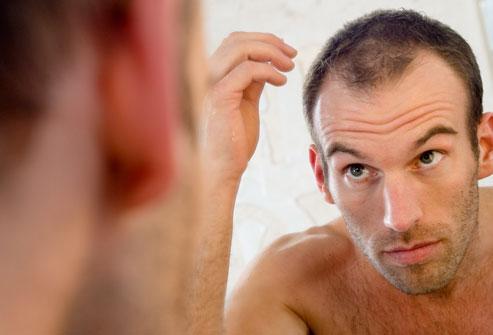 Облысение у мужчин; профилактика и лечение_1.jpg