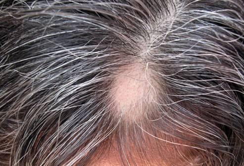 Вырастает ли волос на месте выпавшего