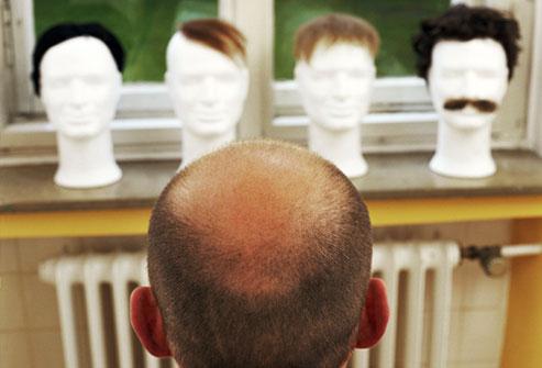 Облысение у мужчин; профилактика и лечение_11.jpg