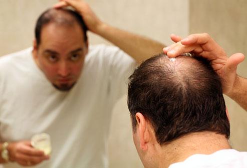 Облысение у мужчин; профилактика и лечение_7.jpg