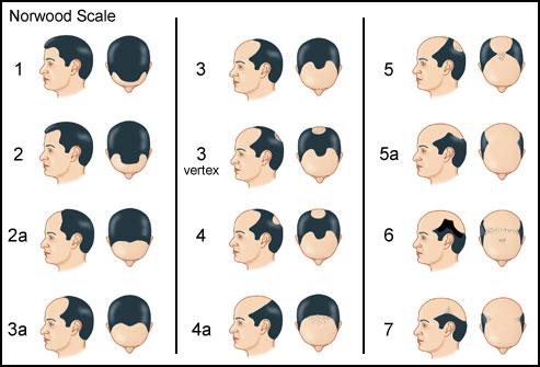 Облысение у мужчин; профилактика и лечение_8.jpg
