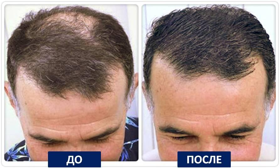 Очаговое выпадение волос отзывы