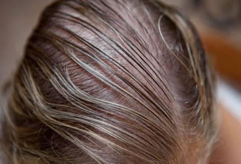 Очень сильно истончаются волосы