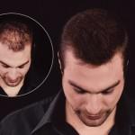 С Kmax волосы можно сделать гуще_подходит для мужчин