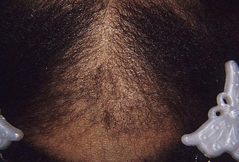 Как поддержать красоту волос и здоровье кожи головы_itshair_14