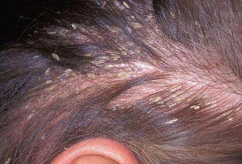 Как поддержать красоту волос и здоровье кожи головы_itshair_4