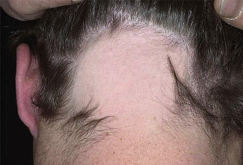 Как поддержать красоту волос и здоровье кожи головы_itshair_7