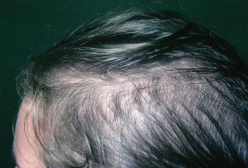 Как поддержать красоту волос и здоровье кожи головы_itshair_9