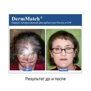 DermMatch до и после_2