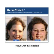 DermMatch до и после_3