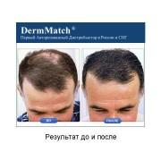 DermMatch до и после_4