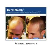 DermMatch до и после_6