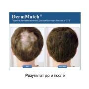 DermMatch до и после_7