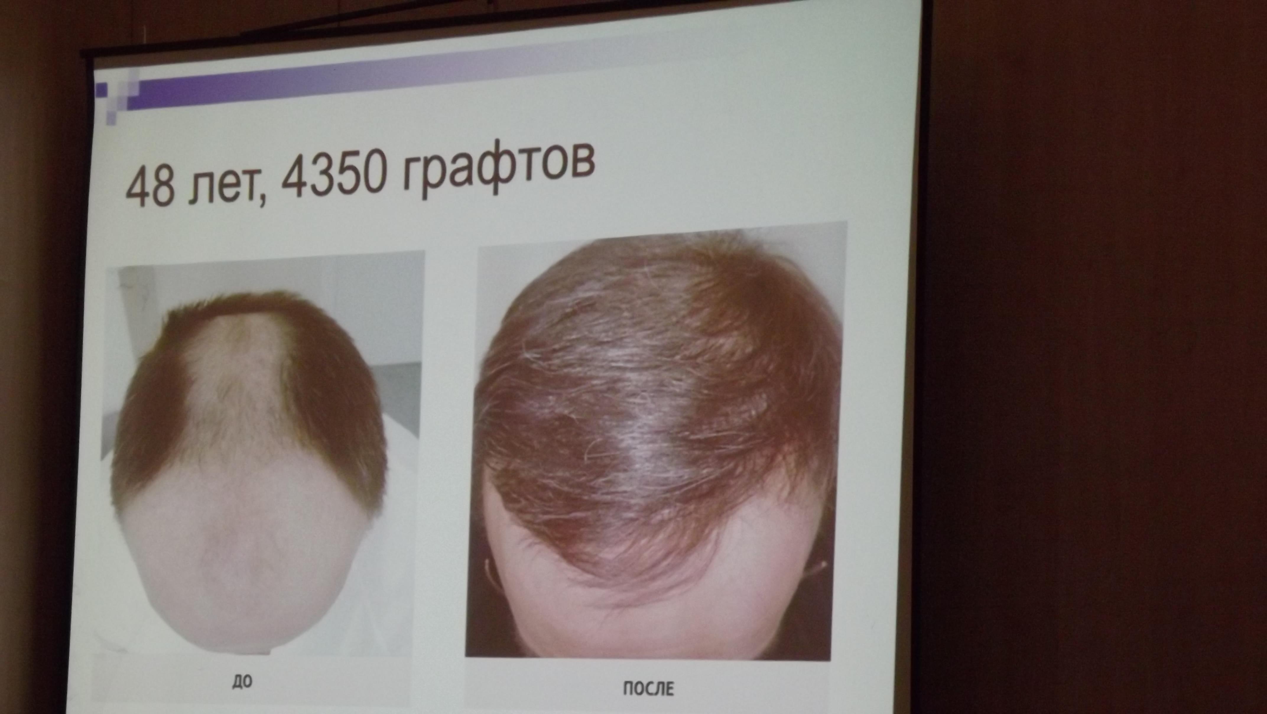 лучшие магазинные средства для роста волос