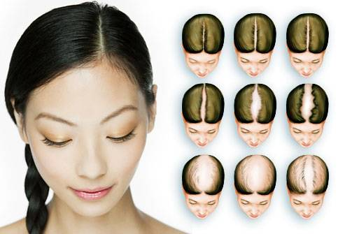 Тонкие и редкие волосы у женщин_статья на itshair_6